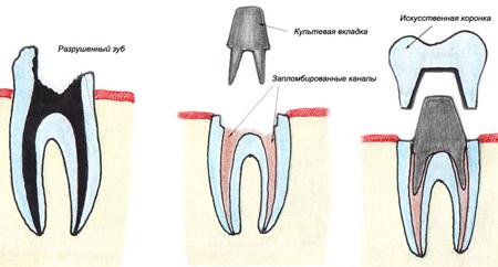 Фото: восстановление зуба культевой вкладкой и коронкой