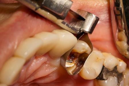 Фото: восстановление зуба от корня