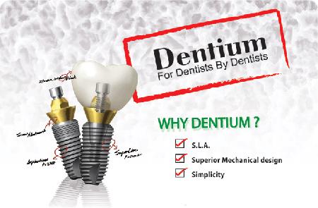 Фото: импланты Дентиум