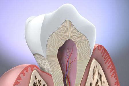 Фото: оголение шейки зуба