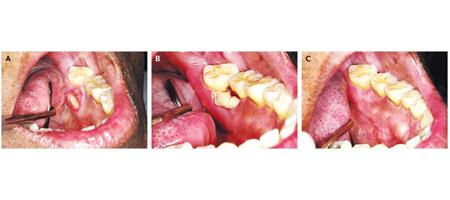 Фото: остеонекроз челюсти