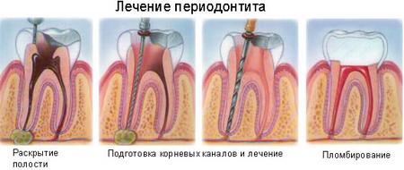 Фото: схема лечения периодонтита