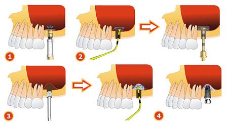 Фото: схема наращивания костной ткани при имплантации зубов