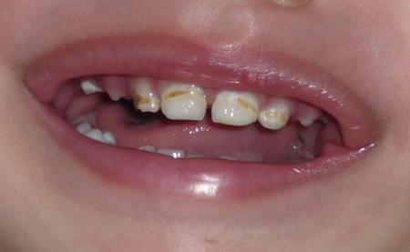 О зубной пасте и маркерах на тюбике