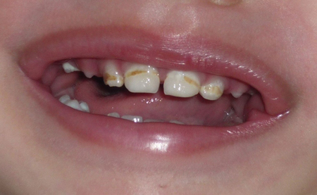 Фото: коричневый налет на зубах у ребенка