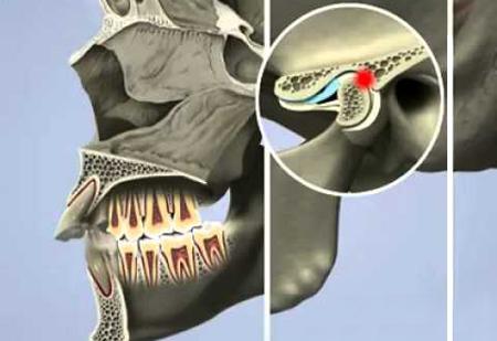 Фото: хрустит челюсть при открывании рта