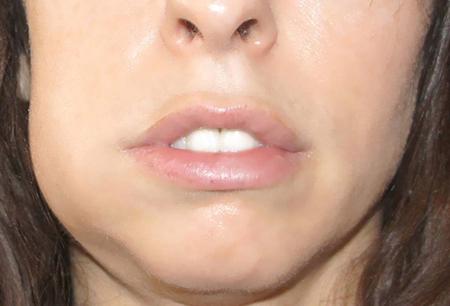 Фото: периостит челюсти