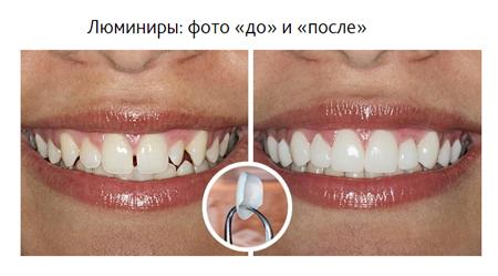 Фото: люминиры до и после