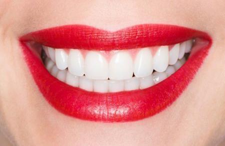Фото: ламинирование зубов