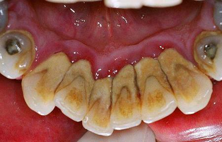 Фото: как избавиться от зубного камня в домашних условиях