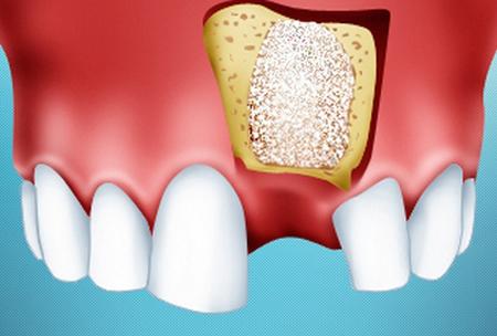 Фото: наращивание кости челюсти под зубной имплант
