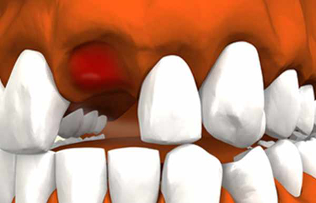 Фото: альвеолит после удаления зуба