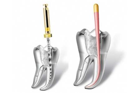 Фото: схема процесса депульпации зуба