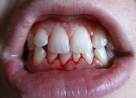 Фото: кровоточат десны при беременности