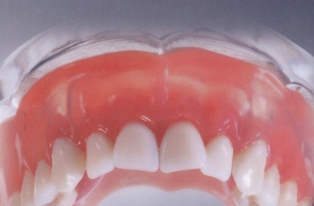 Фото: съемный зубной протез