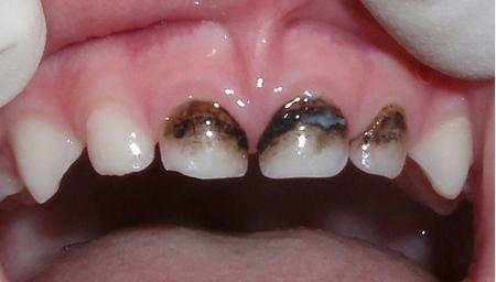 Фото: потемнение молочных зубов после серебрения