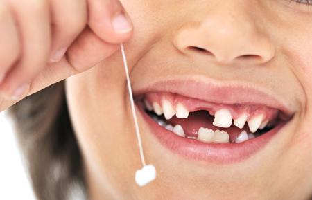 Фото: как вырвать зуб без боли в домашних условиях