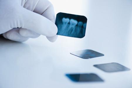 Фото: нужно ли удалять зубы мудрости