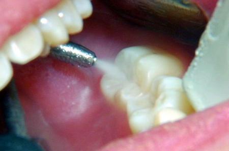Фото: аппликационная анестезия зубов