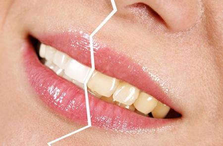 Фото: как отбелить желтые зубы