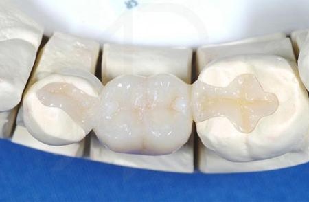 Фото: зубные вкладки