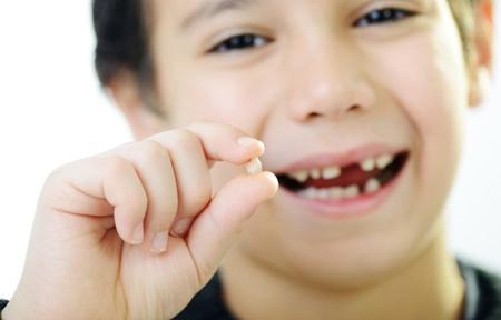 Фото: удаление молочного зуба на дому