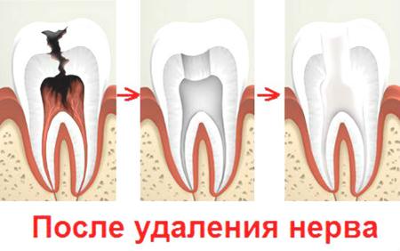 Фото: зуб после удаления нерва