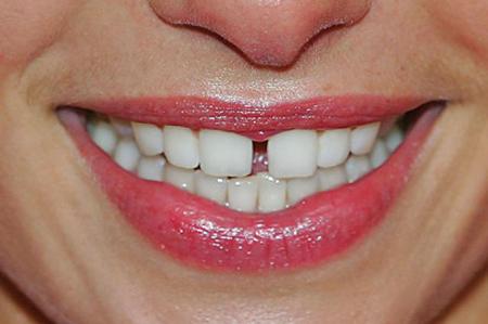 Фото: щель между передними зубами