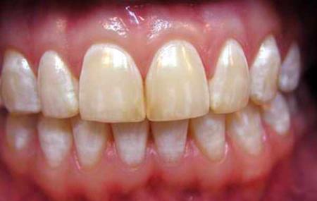 Фото: белые пятна на зубах