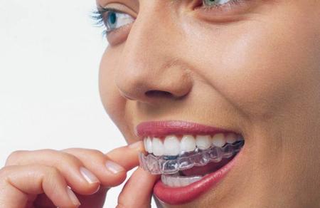 Фото: прозрачные каппы для выравнивания зубов