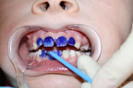 Фото: процесс серебрения молочных зубов