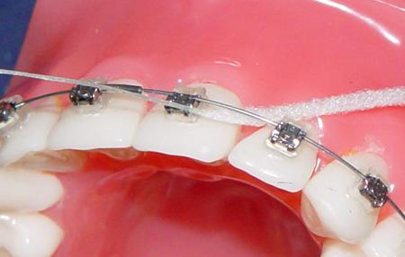 Фото: чистка брекетов зубной нитью