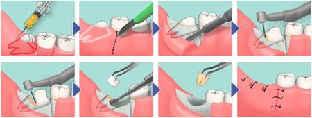 Фото: схема удаления зуба мудрости