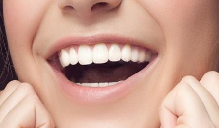 Фото: красивые и здоровые зубы