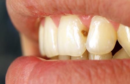 Фото: кариес на передних зубах