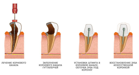Фото: схема установки штифта в зуб