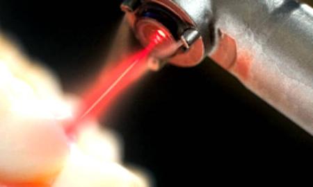Фото: лечение кариеса лазером