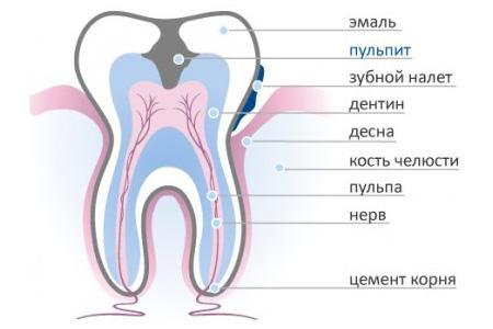 Фото: схема строения зуба