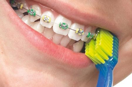 Фото: чистка брекетов зубной щеткой