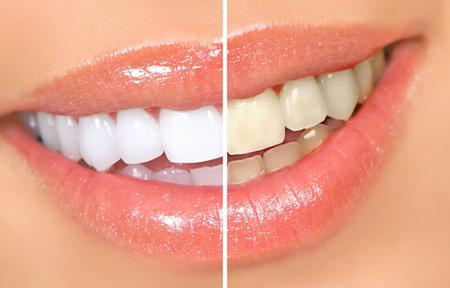 Фото: как очистить зубы от желтого налета в домашних условиях