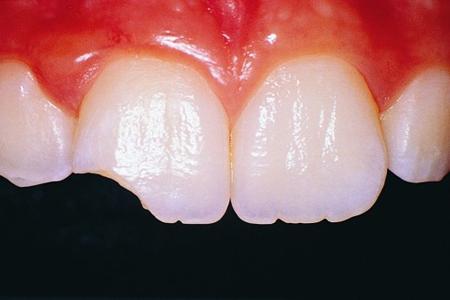 Фото: откололся кусочек переднего зуба