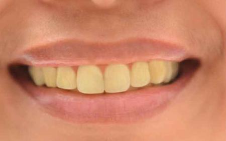 Фото: желтые зубы