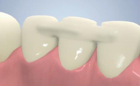Фото: шинирование зубов