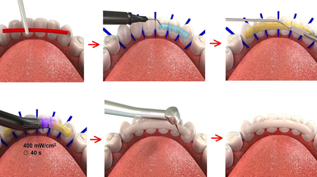 Фото: схема установки шины на зубы
