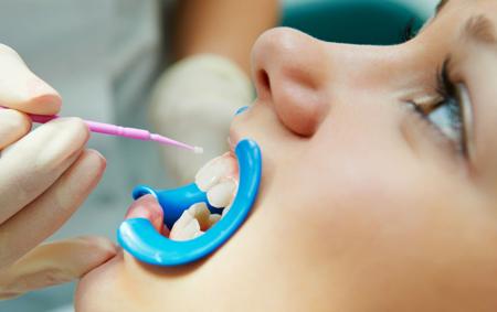 Фото: фторирование зубов в стоматологии