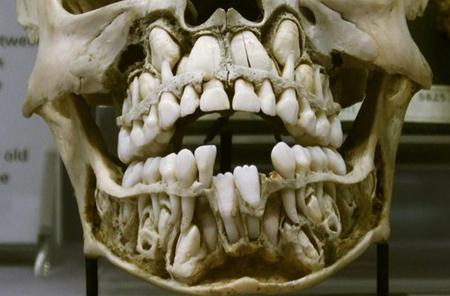 Фото: строение челюсти человека