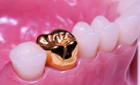Фото: металлические коронки на зубы