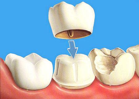 Фото: коронка на зуб